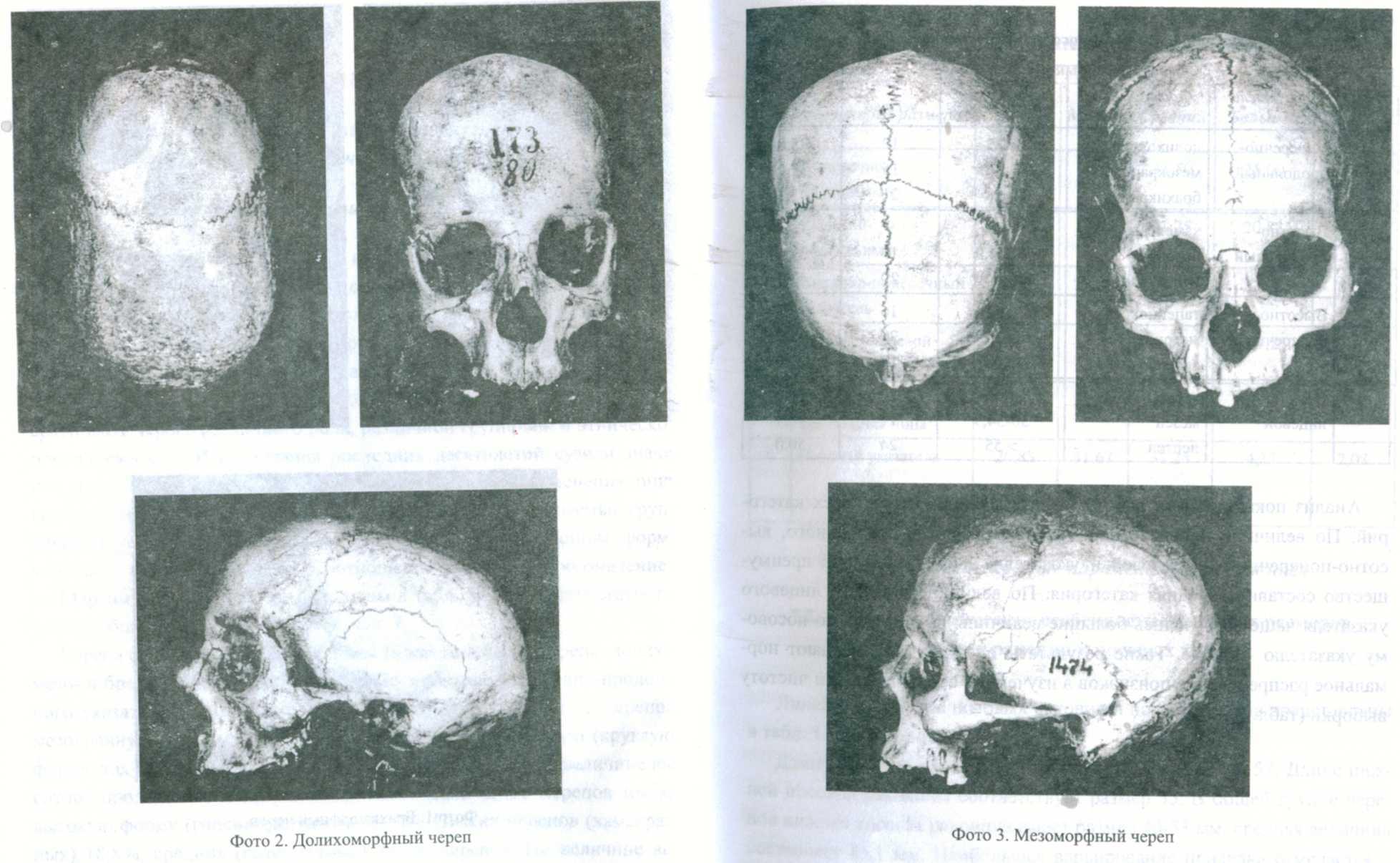 Форма черепа человека фото 2