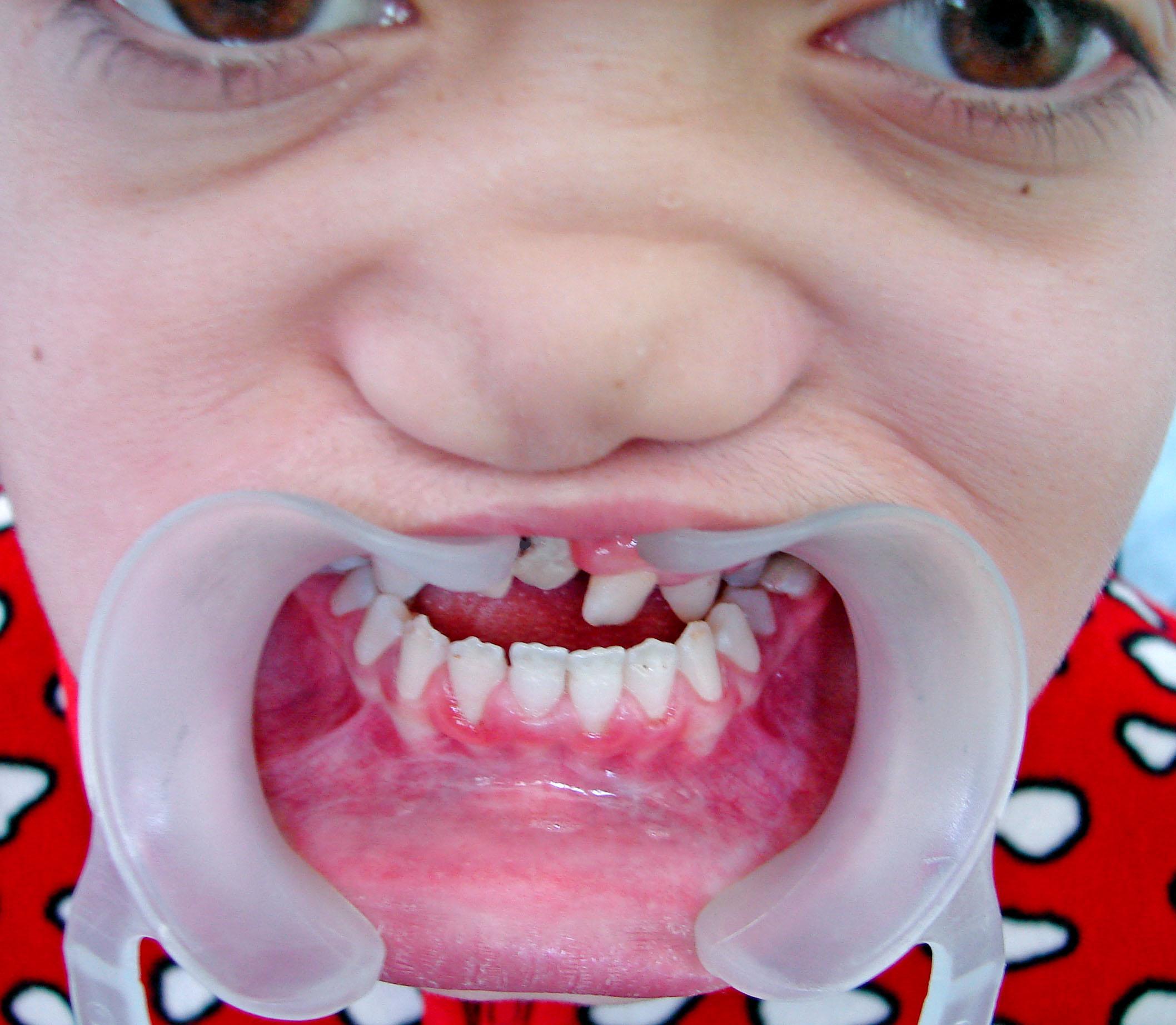 Фото верхних зубов у ребенка